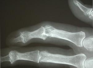 Plastic surgery for arthritis, Geelong